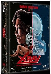 X-Ray - Der erste Mord geschah am Valentinstag (1981) (Cover B, Collector's Edition, Limited Edition, Mediabook, Uncut, Blu-ray + DVD)
